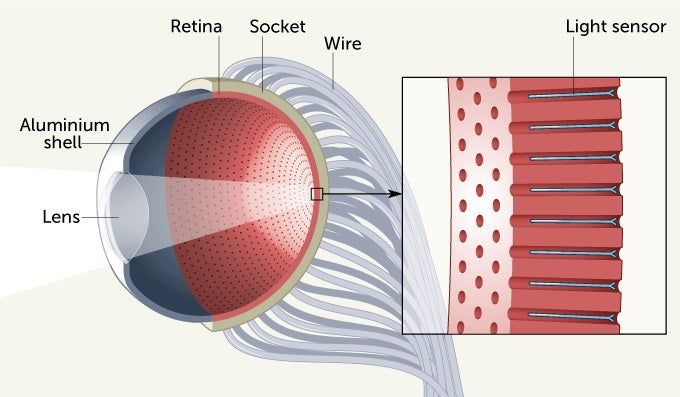 Scientists have developed an artificial eye to act as bionic eye for visually impaired people